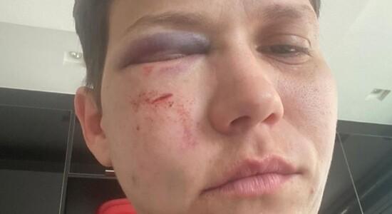 Karol Eller foi agredida